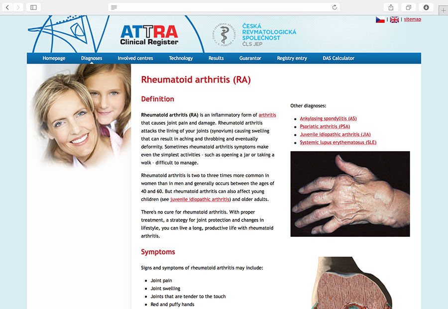 ATTRA: Multicentric system for the assessment of the progress and results of biological therapy of ankylosing spondylitis, juvenile idiopathic arthritis, psoriatic arthritis, rheumatoid arthritis, and systemic lupus erythematosus.