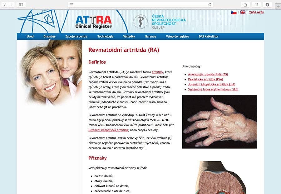 ATTRA: multicentrický systém pro hodnocení průběhu a výsledků biologické terapie ankylozující spondylitidy, juvenilní idiopatické artritidy, psoriatické artritidy, revmatoidní artritidy a SLE (systémový lupus erythematosus).