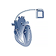 KARDIO-ICD – Registry of implantable cardioverter-defibrillators (ICD)